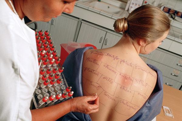 Food Allergy Skin Test